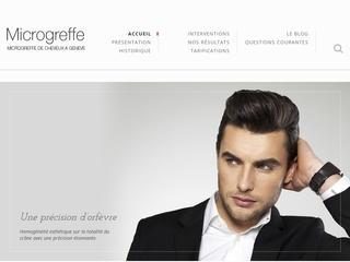 Guide greffe de cheveux